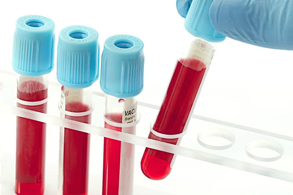 Анализ крови на глюкозу: описание, показания, методы